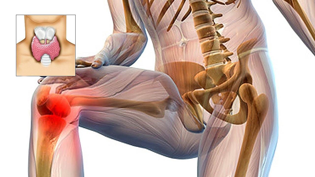 cu articulațiile bolii tiroidiene rănite