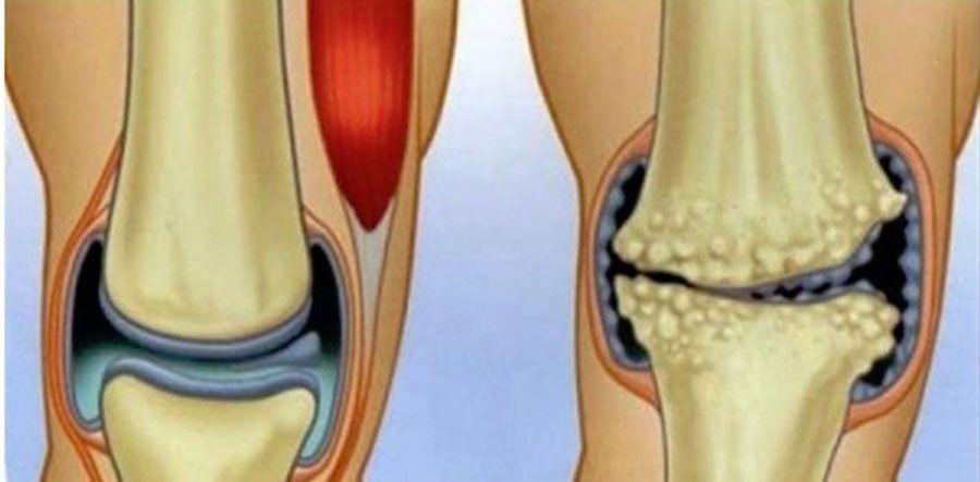 care este durerea la genunchi)