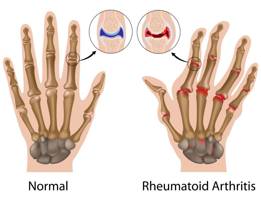 osteochondroza simptomelor articulației cotului