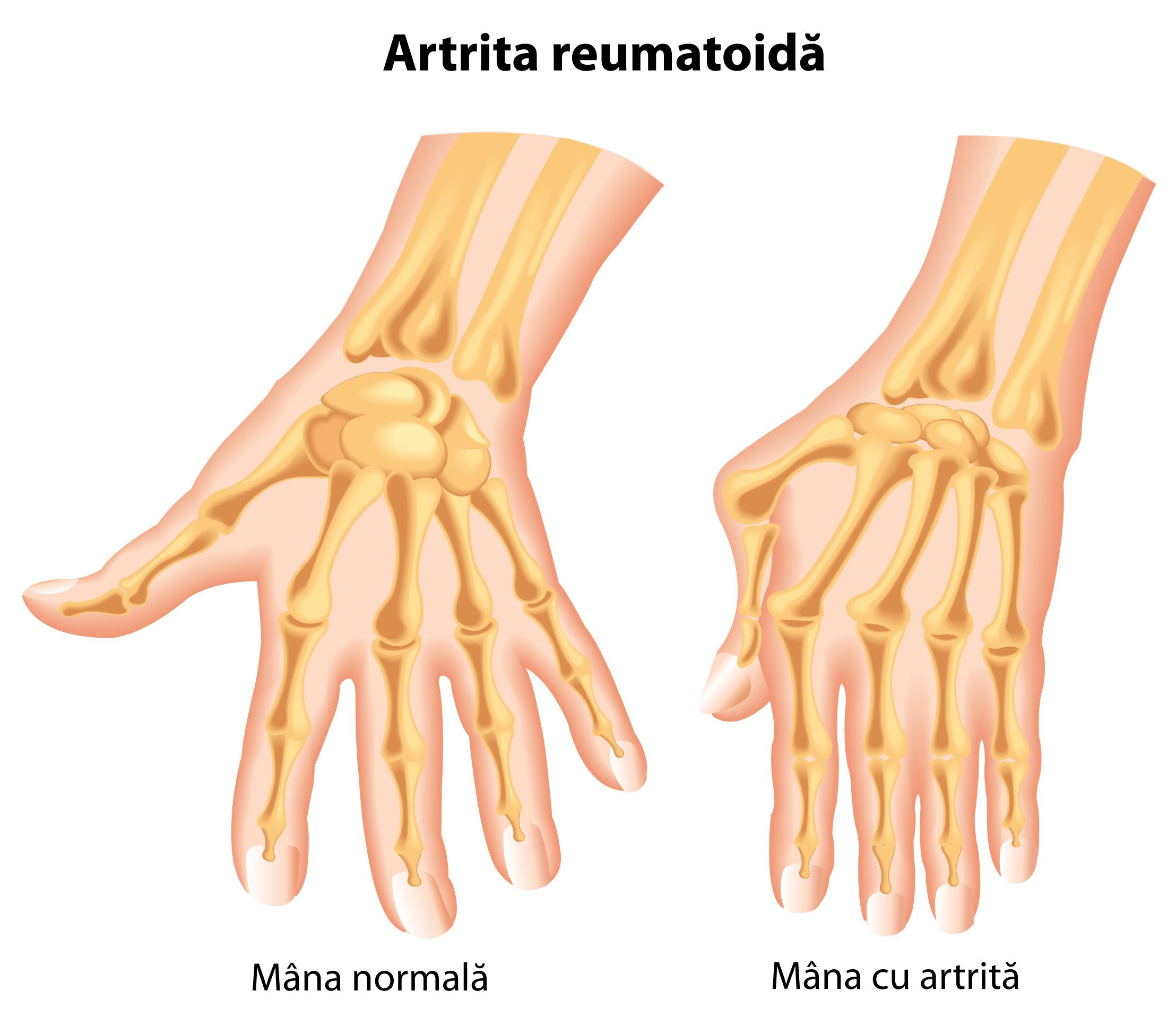 artroza deformantă a degetelor