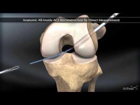edem trabecular al tratamentului articulațiilor genunchiului ghemuiește durerea articulară