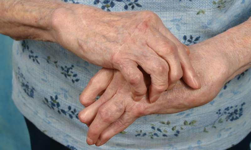 balsam pentru articulații 250ml recenzii artroza tratament dureri articulare