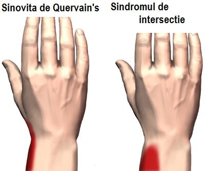 diagnoza durerii articulare deget mare