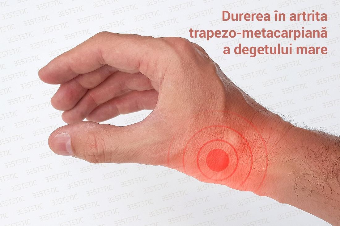artrita mainilor cum sa tratezi
