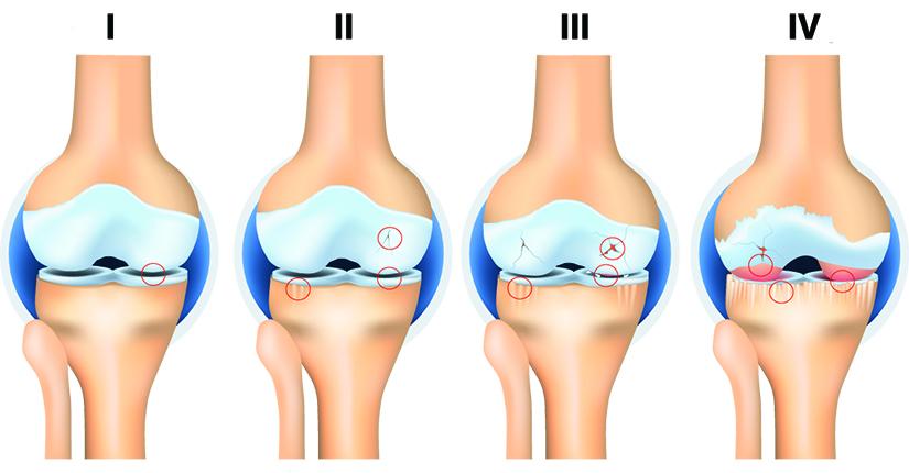 artroza gradului 1 al articulațiilor genunchiului)