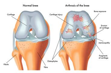 Tratamentul artrozei genunchiului 3-4 grade. Gonartroza bilaterală a genunchiului 3-4 grade