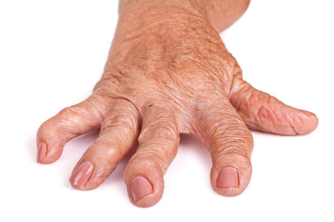 tratamentul simptomelor articulare ale artritei reumatoide
