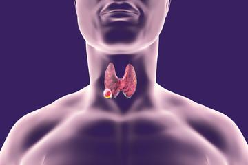 boala articulației tiroidiene