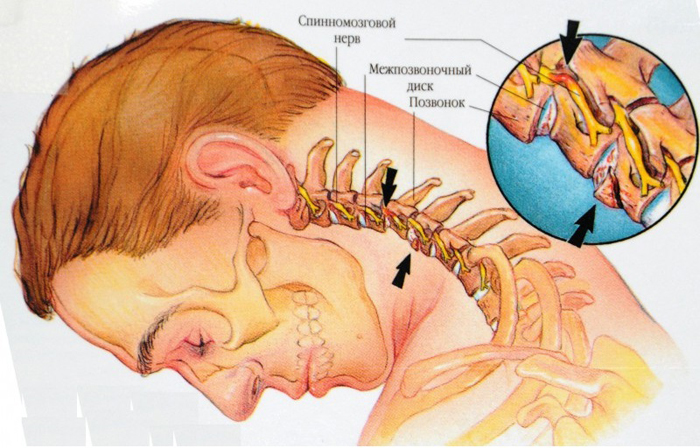 ce unguente ajută la osteochondroza regiunii toracice
