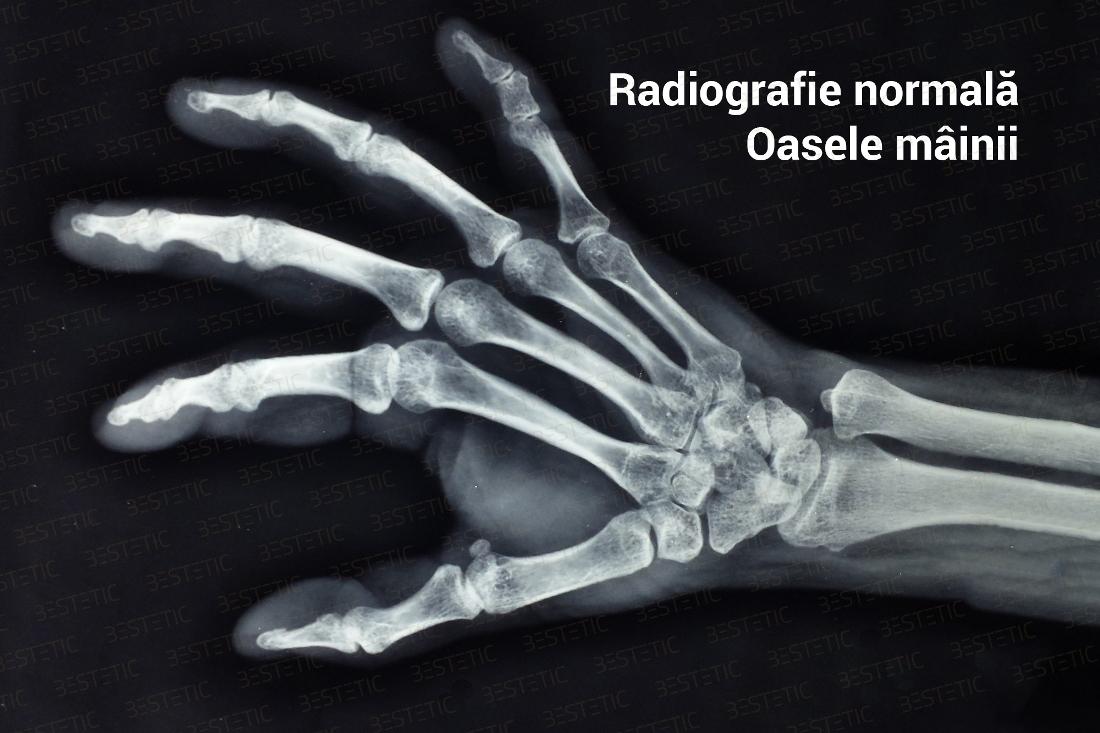 artrita 3 degete ale mâinii stângi
