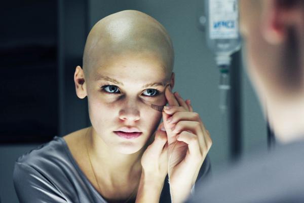 cum să tratezi durerile articulare după chimioterapie