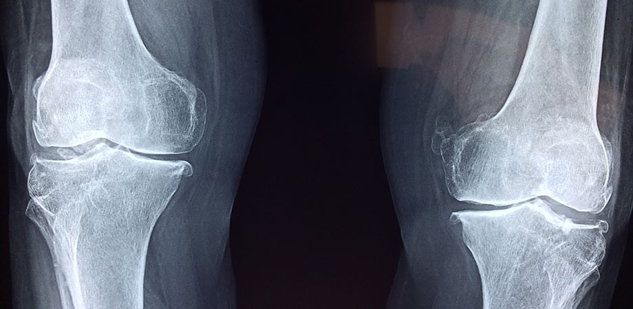 hepatoza genunchiului tratament de 3 grade