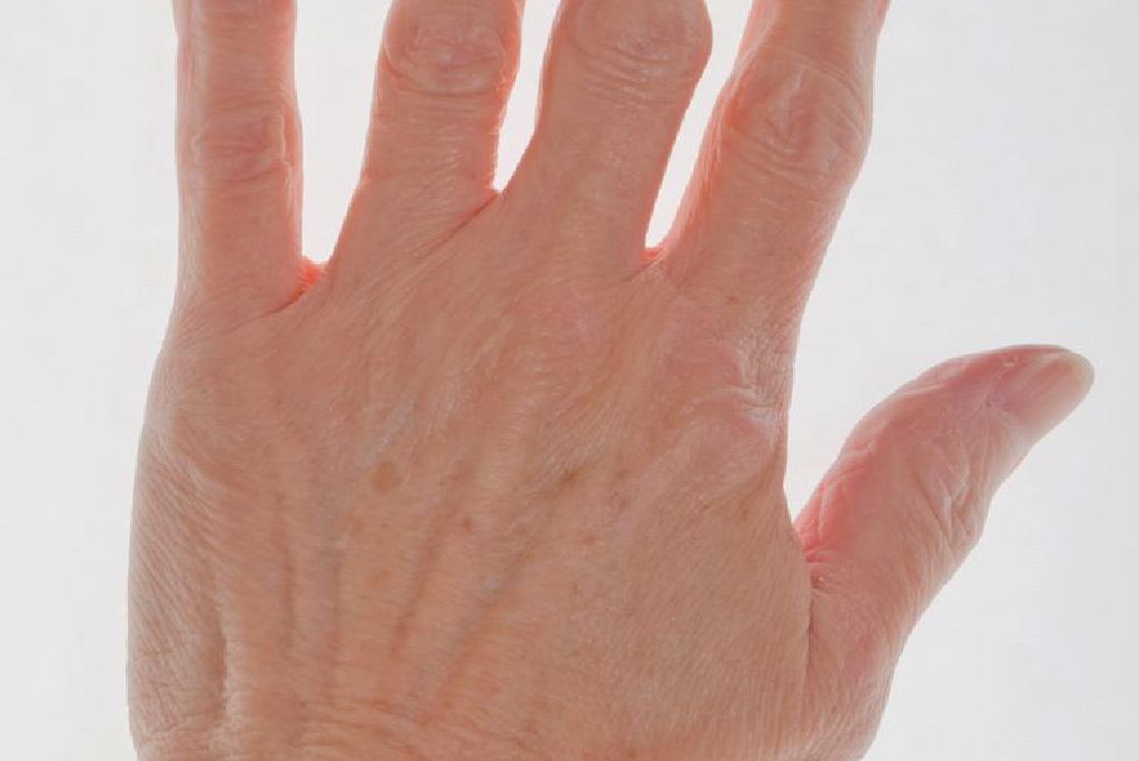 artrita la vârful degetului