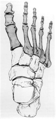 Tratamentul de luxație articulară Lysfranc boala progresiva a articulatiilor