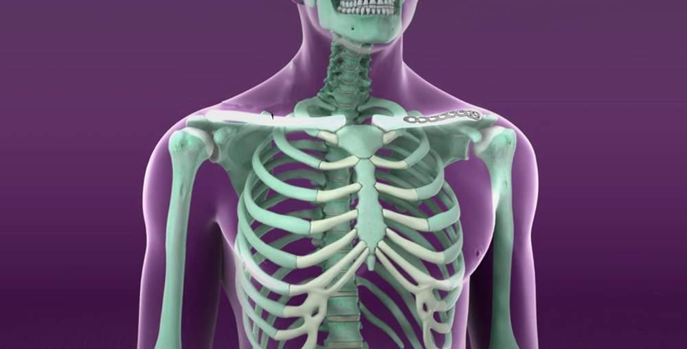 deteriorarea articulației acromioclaviculare)