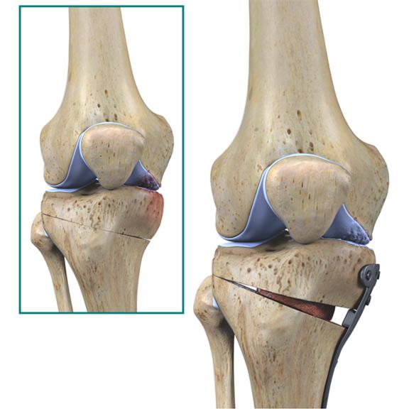 refacerea osteotomiei genunchiului