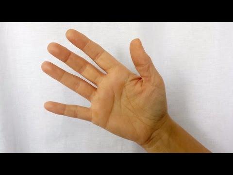 artroza mâinilor stadiului inițial decât tratarea
