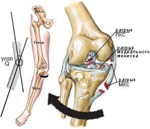 leziune a ligamentului la genunchi