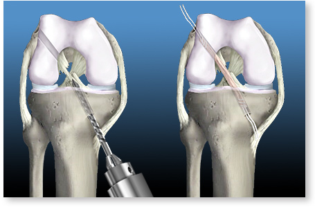 Totul despre ruptura de ligament incrucisat anterior ( LIA ) | nightpizza.ro