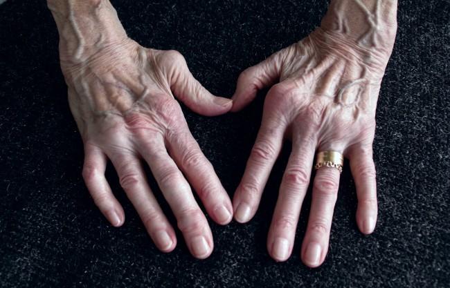 afectarea articulațiilor în artrita reumatoidă)