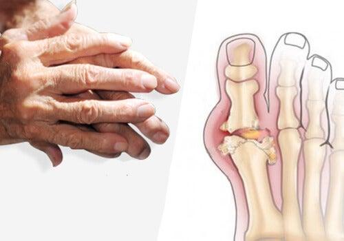 cum se poate vindeca artrita)