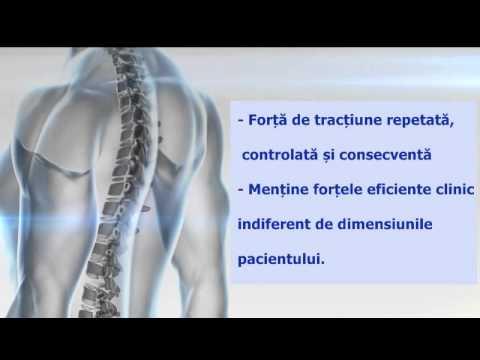 Osteochondroza spondilartroza arcadelor