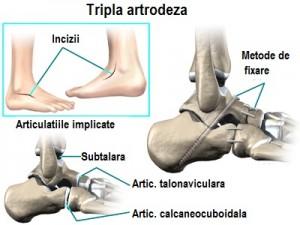 piciorul plat și artroza genunchiului artrite și medicamente eficiente pentru artroză
