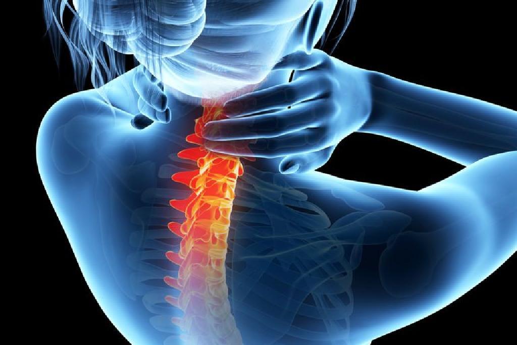 artroza articulațiilor fațetei ale coloanei vertebrale)