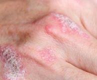 boli articulare cu manifestări ale pielii