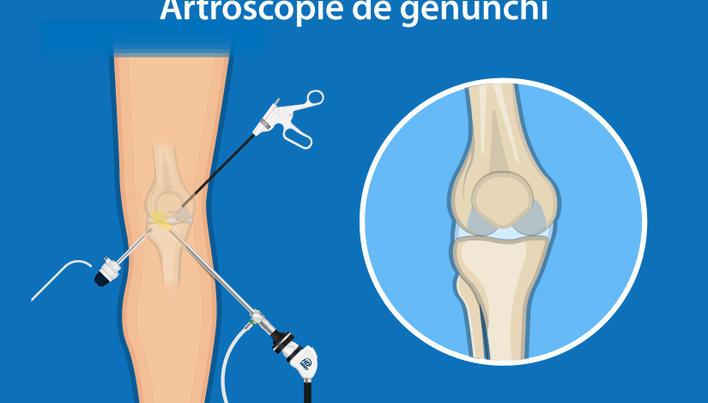posibile leziuni la genunchi