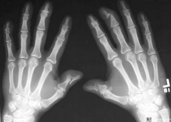 artrita in articulatia degetului)