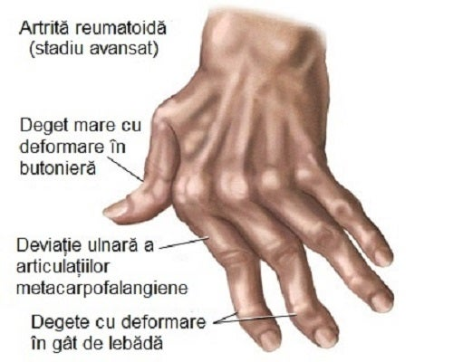 deformând artroza articulațiilor degetelor)