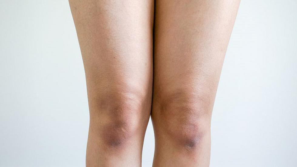 tratament cu ebonita la genunchi)