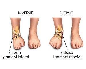 tratament de entorsă musculară și umăr