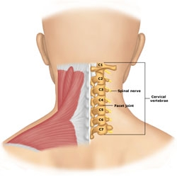 artroza vertebrală c4-c7 tratamentul coloanei vertebrale cervicale