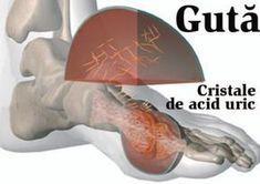 tratament pentru articulațiile bolnave)