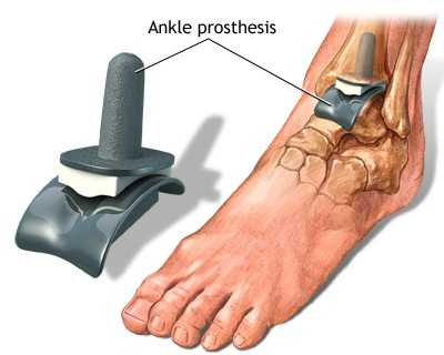 boala articulației gleznei tratament articular cu un liser