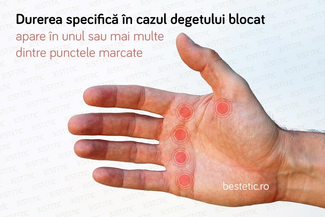 articulațiile degetelor doare și apar denivelări)