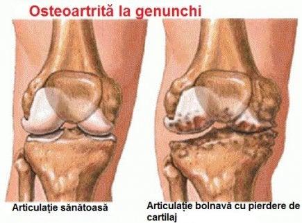 cauza bolii articulației genunchiului