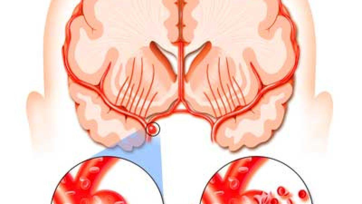 Rata durerii articulare după accident vascular cerebral)