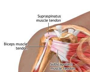 cum să tratezi rupturile tendonului umărului