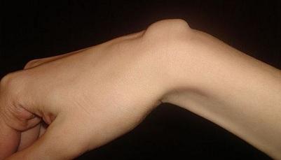 dureri de spate la șoldul stâng