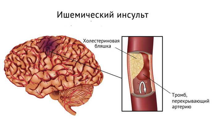 Atacul Vascular Cerebral: Simptome si Tratament | CENTROKINETIC