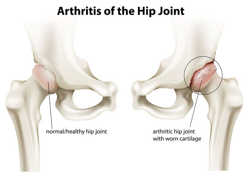 dureri articulare coxartroza articulației șoldului