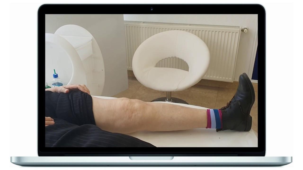 Cum prevenim aparitia artrozei de genunchi?