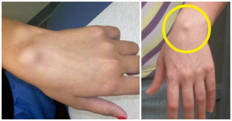 tratament la încheietura mâinii)