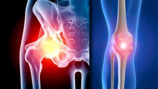 artroza de gradul doi al genunchiului)