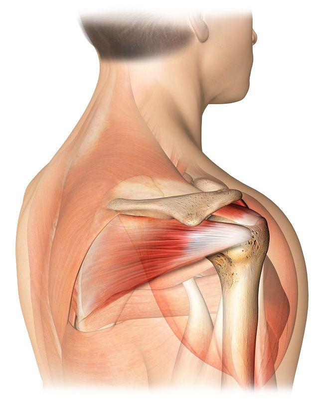 ce poate răni în articulația umărului