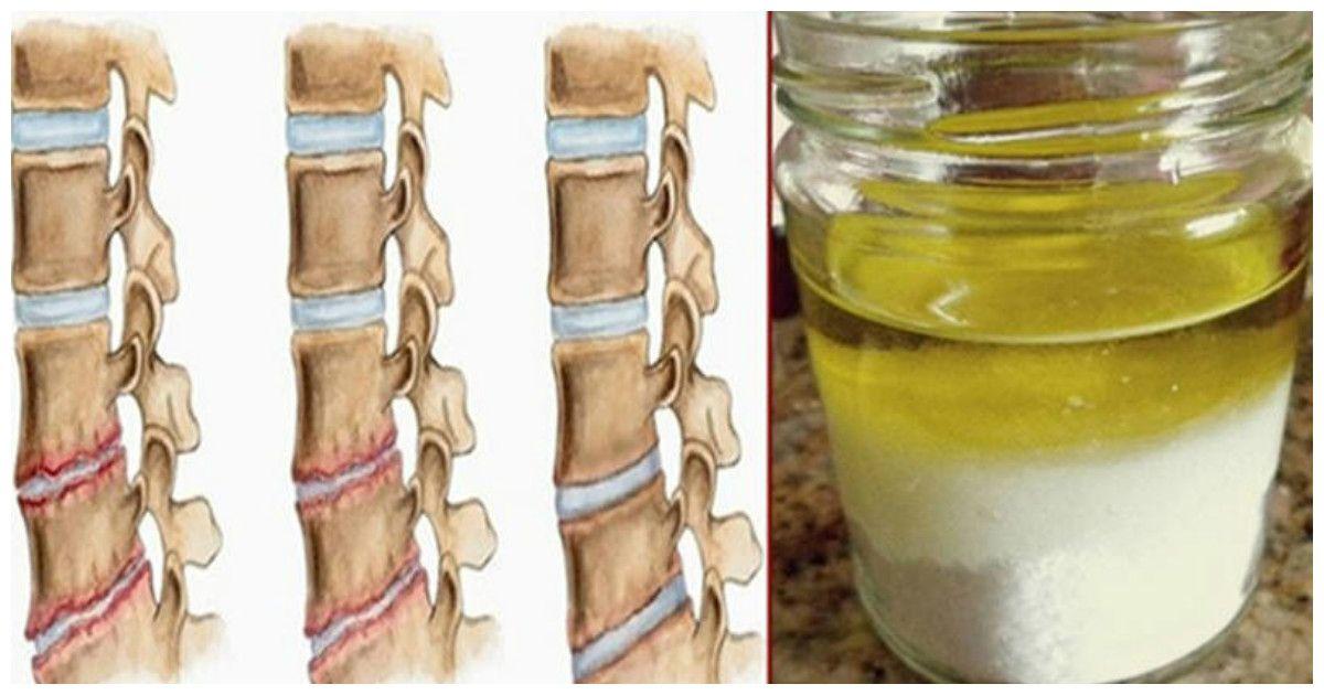 tratarea leziunilor meniscului lateral al genunchiului