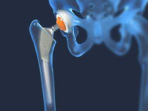 artroza a 2-a etapă a articulației șoldului